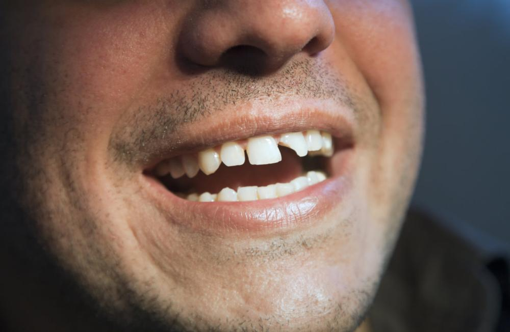 Broken Tooth Dental Accident | Emergency Dentist Loxahatchee