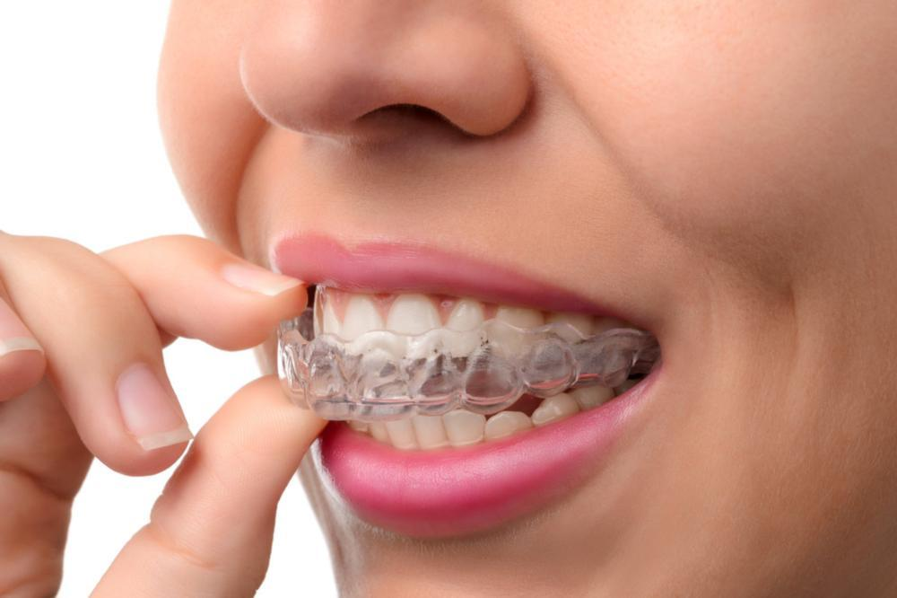 Invisalign Patient | Dentist Loxahatchee | Groves Dental Care
