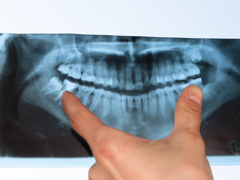 Dental X Ray | Dentist in Loxahatchee