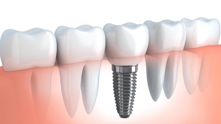 Model of dental implant in Wellington FL