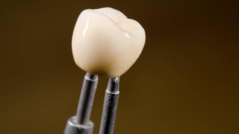 Dental Crowns | Groves Dental Care