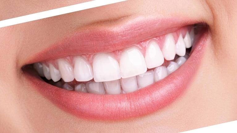Teeth Whitening Facts | Groves Dental Care
