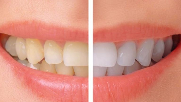 Teeth Whitening | Dentist Loxahatchee FL