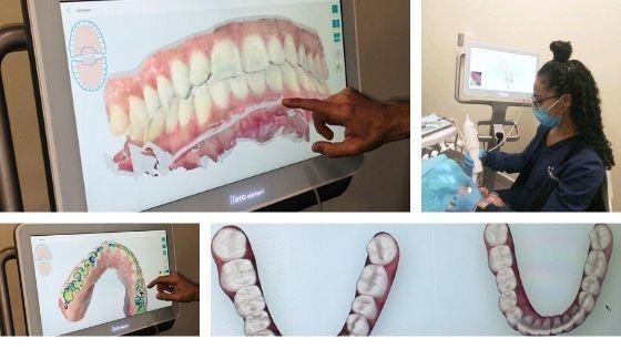 Dentists in Loxahatchee, FL using 3D digital scanning to evaluate a patients teeth.