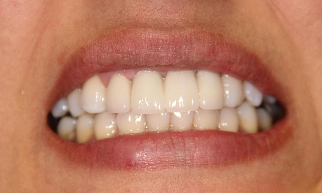 Cosmetic Crowns Patient | Groves Dental Care