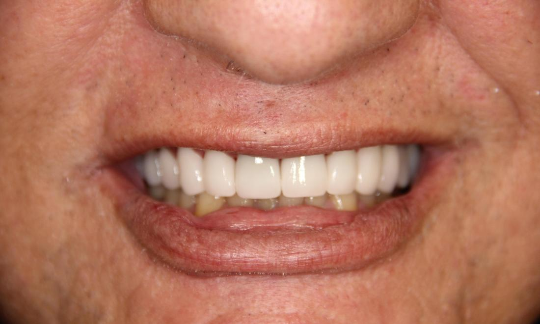 Results from full smile makeover at Loxahatchee dentist office