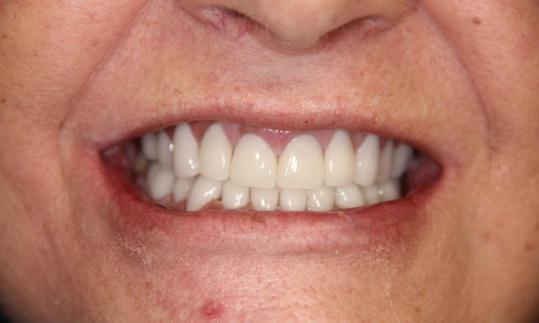 Close up of results from smile makeover at Loxahatchee dentist office