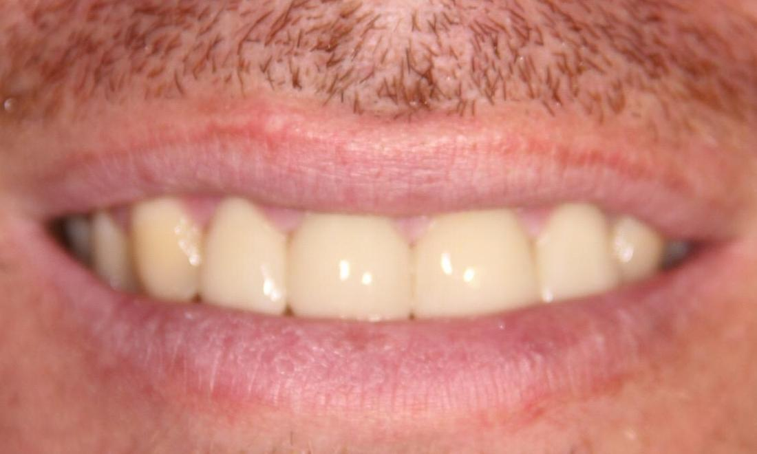 Close up of results from dental crowns and veneers in Loxahatchee FL