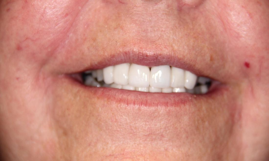 Results from cosmetic dentistry in Loxahatchee for porcelain crowns