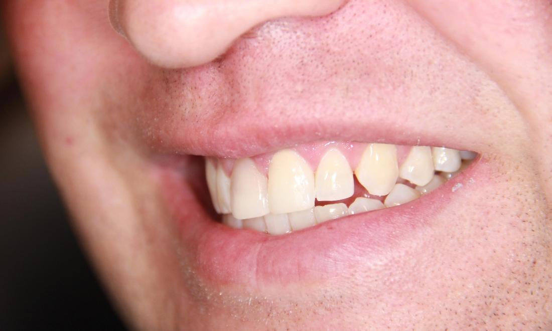 Results from procedure for veneers at dentist office near Wellington