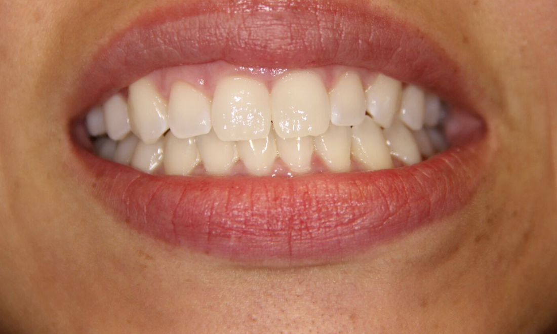 Invisalign Patient | Groves Dental Care