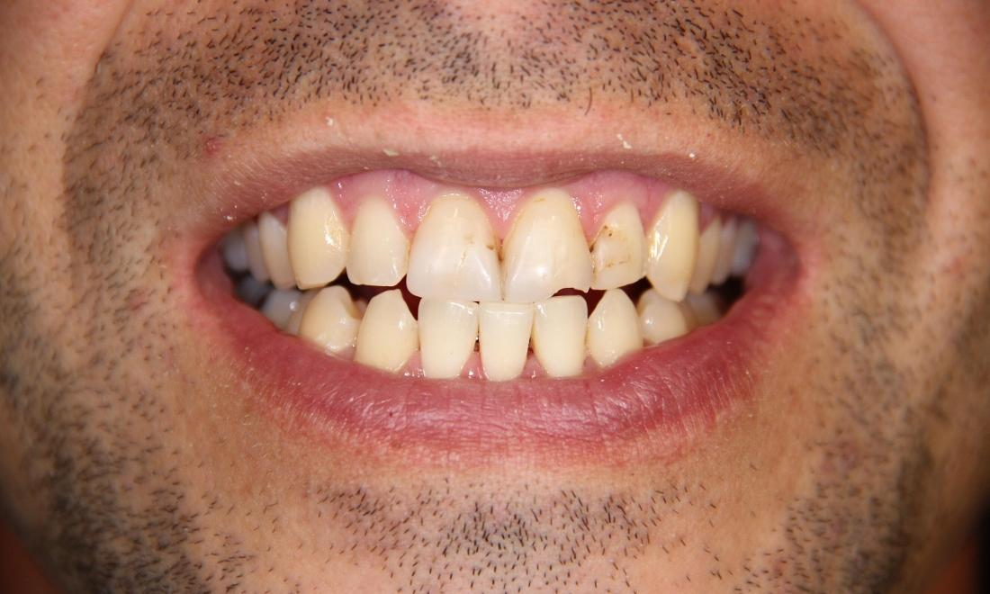 Dental patient showing tooth decay at 33470 dentist office