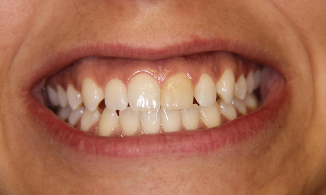 Dental Crown and Teeth Whitening Patient | Groves Dental Care