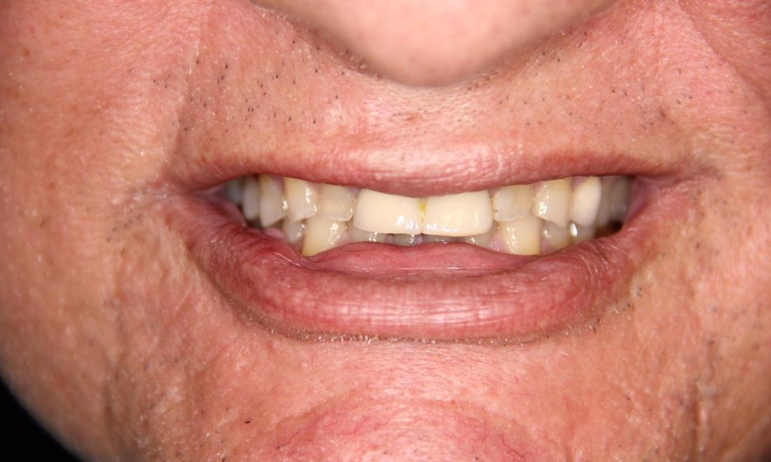 Close up of dental patient with worn down teeth at Groves Dental Care