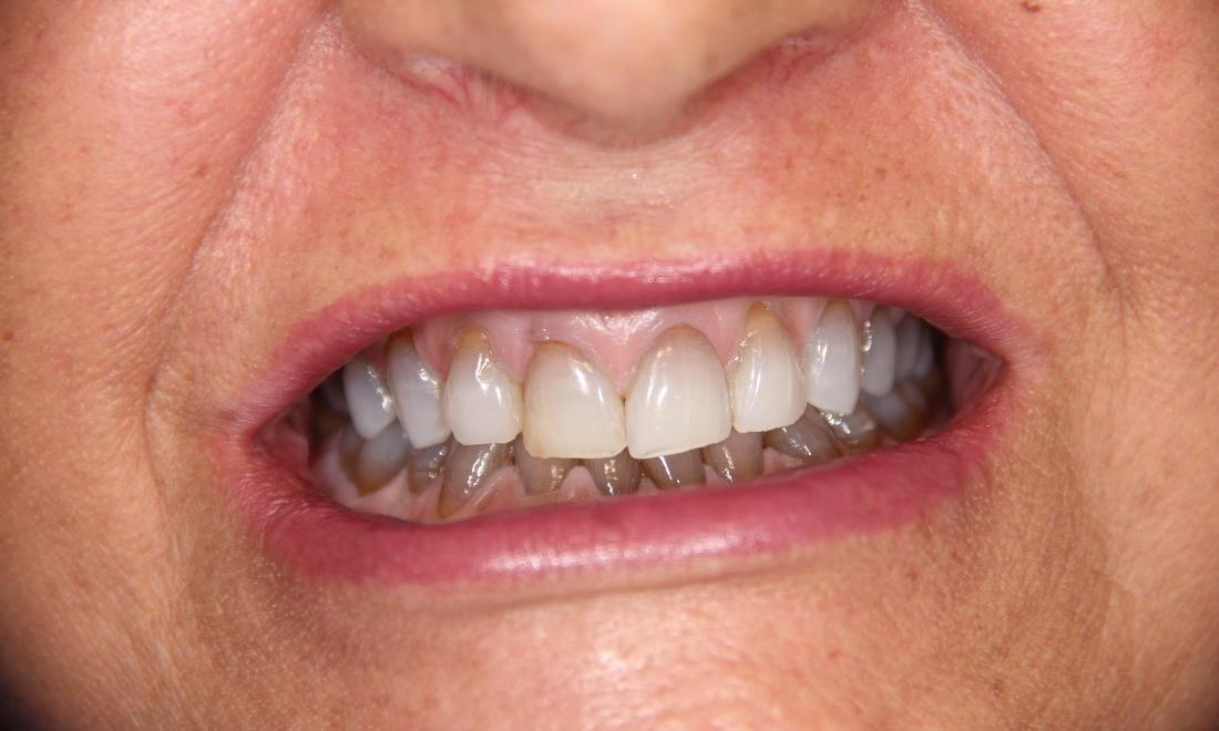 Close up of patient with dark stained teeth at Loxahatchee dentist office