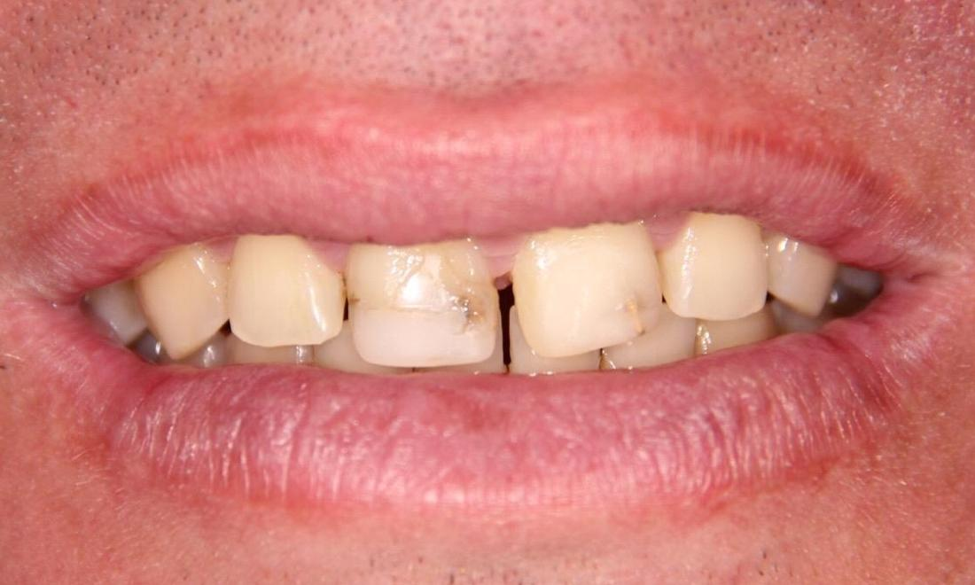 Close up of patients smile with gaps and discolored teeth at 33470 dentist office