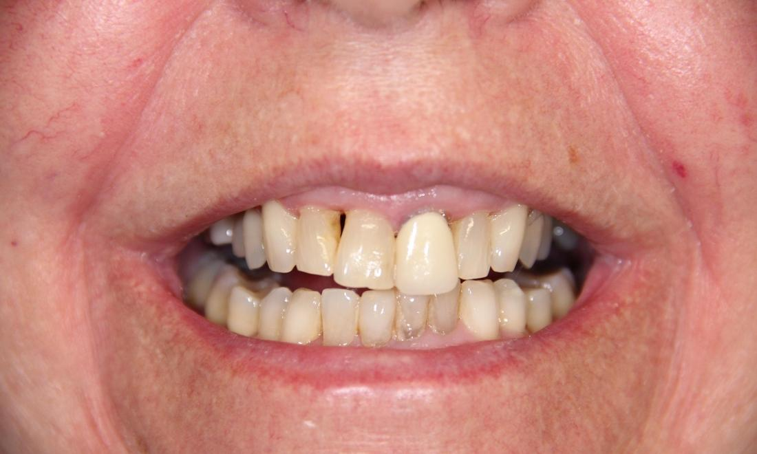Patient with discoloration and tooth decay at cosmetic dentist in Loxahatchee