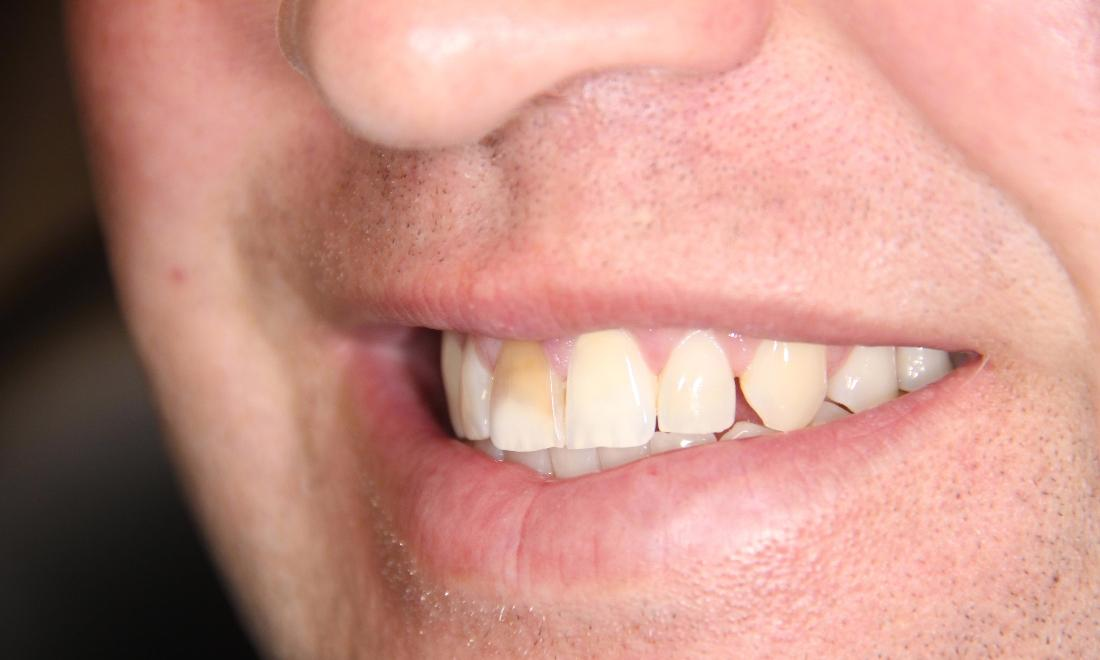 Close up of patient with discolored tooth from dental emergency near 33470