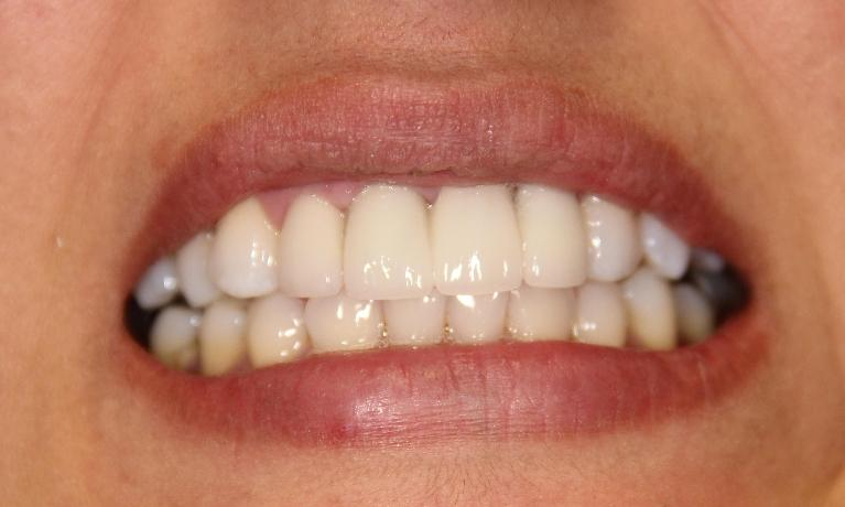 Cosmetic-Dentistry-Crowns-and-Bridges-After-Image