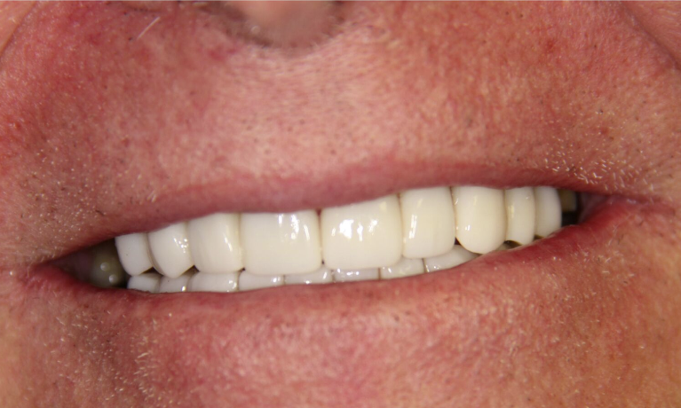 Cosmetic-Dentistry-Full-Mouth-Reconstruction-After-Image
