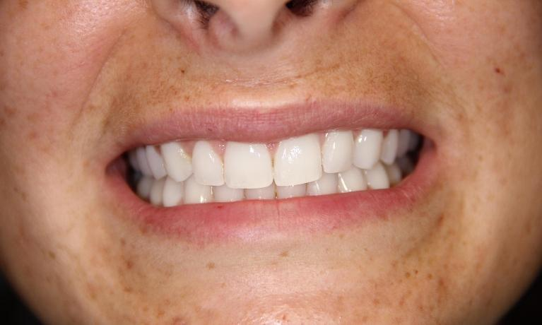 Invisalign-Closing-spaces-After-Image