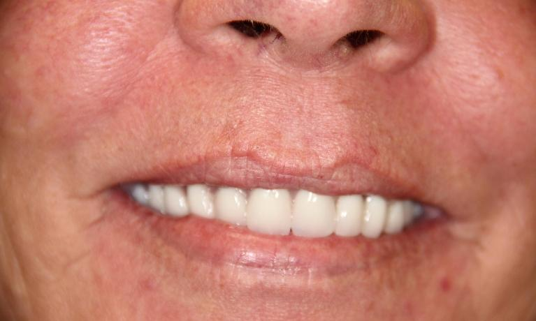 Overdenture-Teeth-that-snap-into-implants-After-Image