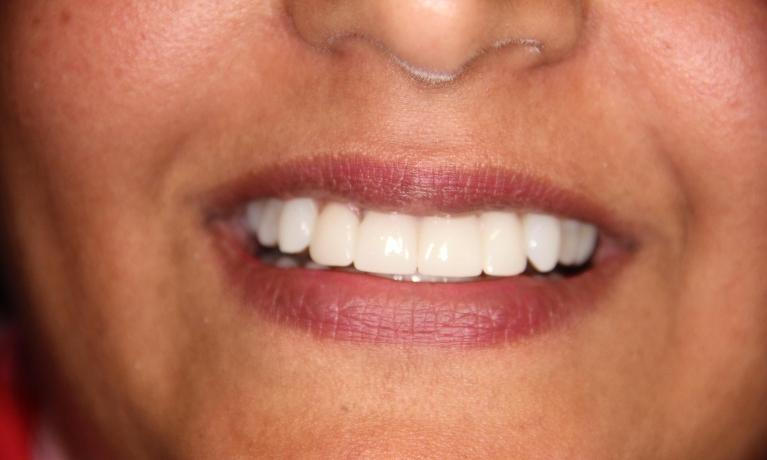 Cosmetic-Dentistry-Upper-front-crowns-After-Image