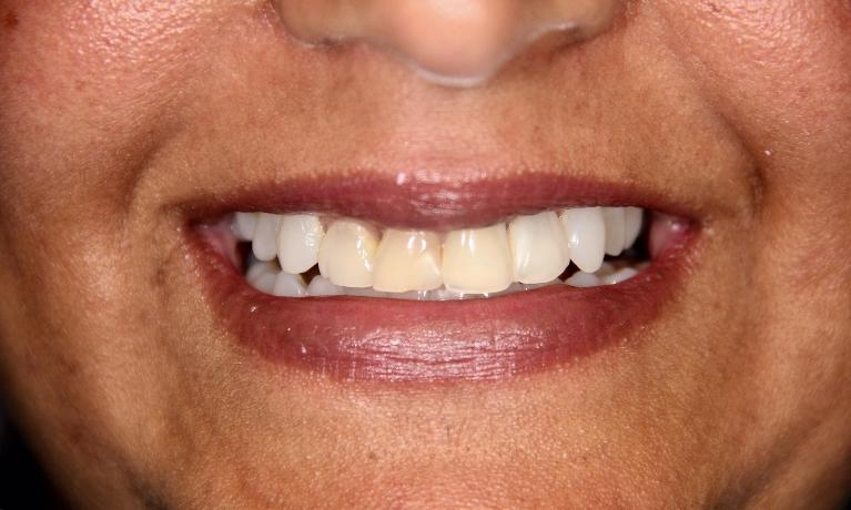 Cosmetic-Dentistry-Upper-front-crowns-Before-Image