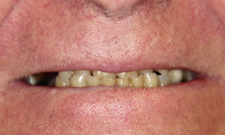 Cosmetic-Dentistry-Full-Mouth-Reconstruction-Before-Image