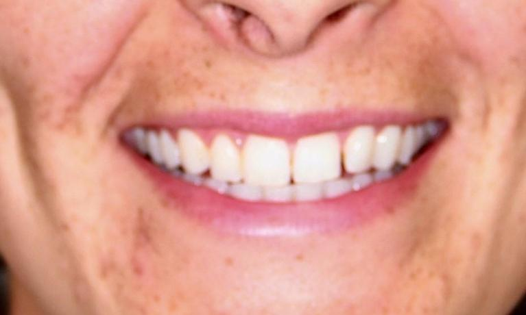 Invisalign-Closing-spaces-Before-Image