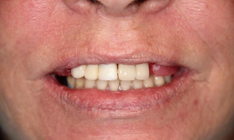 Overdenture-Teeth-that-snap-into-implants-Before-Image